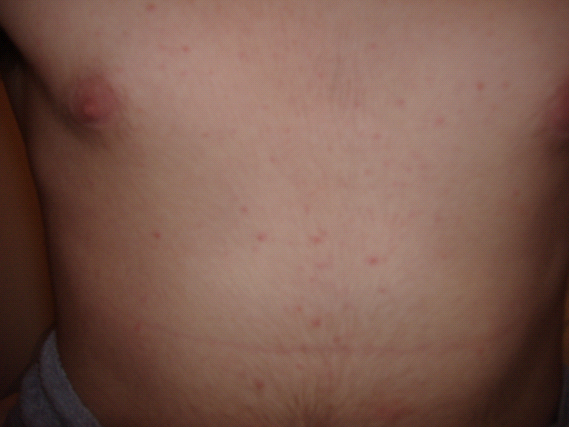 Red Spots On Chest